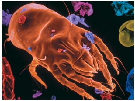 A scanning electron micrograph of a dust mite, a source of allergens that cause allergic reactions. (Reproduced by permission of Phototake.)