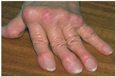 A close-up of a hand deformed by rheumatoid arthritis; the knuckles are swollen and reddened and the fingers curve away from the thumb. (Reproduced by permission of Photo Researchers, Inc.)