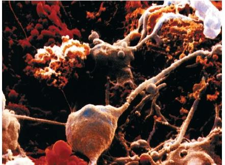 Color scanning electron micrograph of brain cells. The large cells with long, thin branches are neurons. The others are glial cells, specialized structures that support and protect neurons. (Reproduced by permission of Photo Researchers, Inc.)