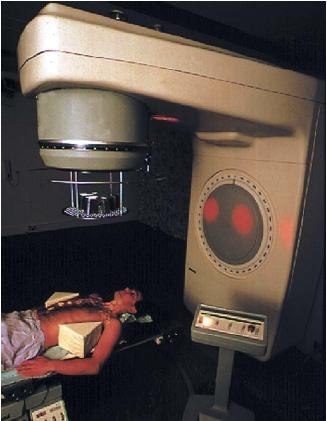 Man undergoing radiation treatment for Hodgkin's disease, a cancer of the lymphatic tissue. The areas to be irradiated appear as illuminated circles on the patient's body. (Reproduced by permission of Photo Researchers, Inc.)