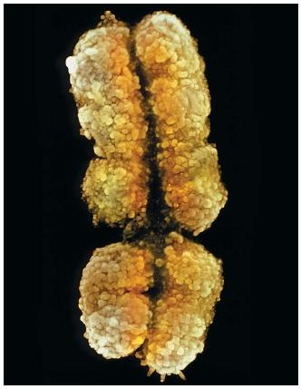 A scanning electron micrograph of a human X chromosome. (Reproduced by permission of Photo Researchers, Inc.)