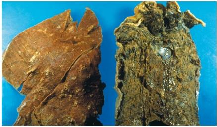 A normal lung (left) and the lung of a cigarette smoker. (Reproduced by permission of Photo Researchers, Inc.)