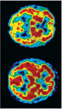 A colored positron emission tomography (PET) scan of the brain of an AIDS patient suffering from dementia (top). Compared to the scan of a normal brain (bottom), the dark areas of the brain in the AIDS patient are much smaller, reflecting a decrease in the brain's ability to function. (Reproduced by permission of Photo Researchers, Inc.)
