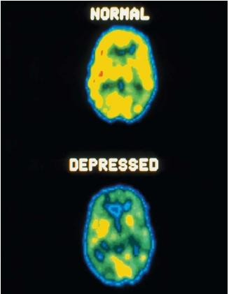 depression mental disorder