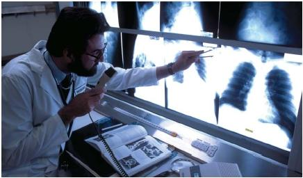 A physician recording his diagnosis on audiotape while viewing a patient's chest X ray. (Reproduced by permission of The Stock Market.)