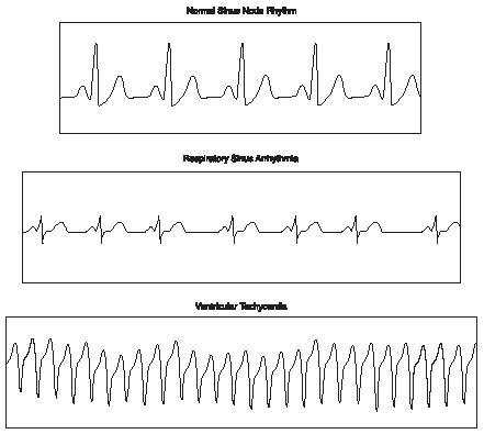 Electrocardiogram rhythm charts. (Reproduced by permission of The Gale Group.)