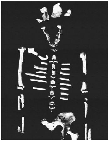 The fossil skeleton of Lucy, the Australopithecus afarensis specimen Donald Johanson's team unearthed in 1974 near Hadar, Ethiopia. Lucy lived about 3.18 million years ago, and had a skull, knees, and a pelvis more similar to humans than to apes. (Reproduced by permission of Photo Researchers, Inc.)