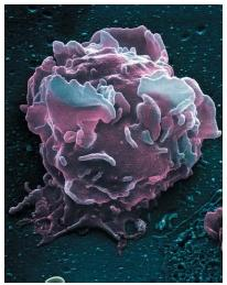 A colored scanning electron micrograph of a white blood cell. (Reproduced by permission of Photo Researchers, Inc.)