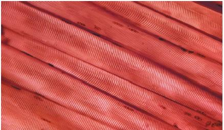 Close-up of striated skeletal muscle. (Reproduced by permission of Photo Researchers, Inc.)