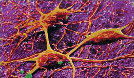 A scanning electron micrograph of three neurons in the human brain. (Reproduced by permission of Photo Researchers, Inc.)