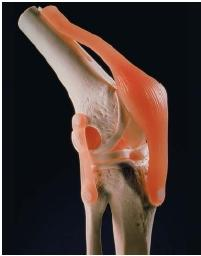 An artificial knee joint made out of plastic. (Reproduced by permission of Photo Researchers, Inc.)