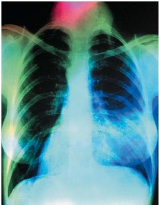 X Rays Of Lungs. A chest X ray showing