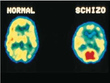 Positron Emission Tomography (PET) brain scans comparing a normal brain (left) with the brain of a schizophrenic (right). (Reproduced by permission of Photo Researchers, Inc.)