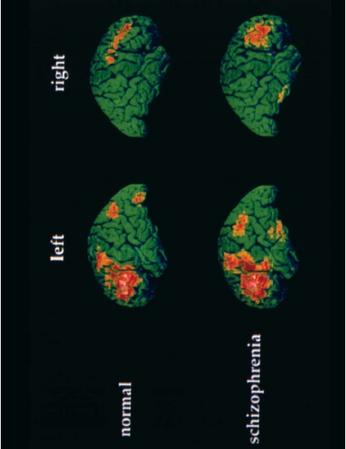 A colored Positron Emission Tomography (PET) brain scans of a schizophrenic while speaking versus normal patient while speaking. (Reproduced by permission of Photo Researchers, Inc.)