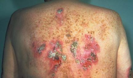 Infection on the back of a man with late-stage syphilis. (Reproduced by permission of Phototake.)